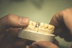 proteza dentystycznego Obrazy Stock
