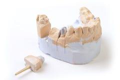 Prothèse d'art dentaire image stock