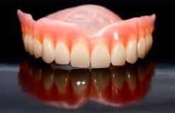 Prothèse dentaire images libres de droits
