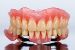 Prothèse squelettique dentaire - vue de face photos stock