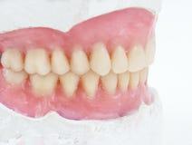 prothèse totale dentaire de cire Photo stock