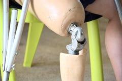 Prothese auf rechtem Bein Stockfoto