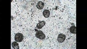 Protoscoleces av parasitiskt avmaskar den mikroskopiska videoen för Echinococcusmultilocularisvridningar stock video