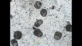 Protoscoleces von Darmparasit Echinococcus multilocularis verdreht mikroskopisches Video stock video