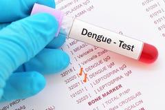 Prov för denguefebervirus arkivfoto