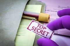 Prov för forskning av blod arkivfoton