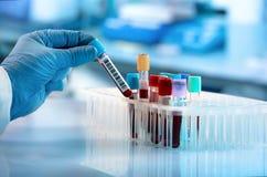 Prova del tubo del sangue della tenuta del tecnico nel laboratorio di ricerca fotografie stock