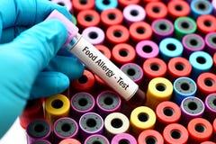 Prova dell'allergene dell'alimento Fotografie Stock Libere da Diritti