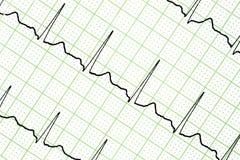 Prova dell'elettrocardiogramma Immagini Stock Libere da Diritti