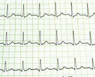Prova dell'elettrocardiogramma Fotografia Stock Libera da Diritti