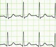 Prova dell'elettrocardiogramma Fotografie Stock Libere da Diritti