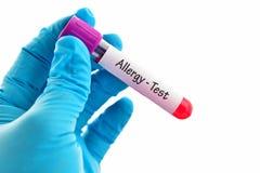 Prova di allergia Immagine Stock Libera da Diritti