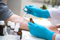 Prova di allergia della puntura della pelle Immagine Stock