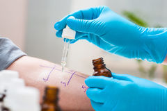 Prova di allergia della puntura della pelle Fotografie Stock