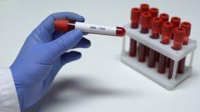 Prova di ANA, medico che mostra campione di sangue in tubo, ricerca del laboratorio, controllo di salute stock footage