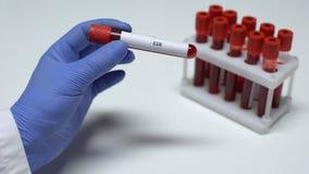 Prova di esr, medico che mostra campione di sangue in tubo, ricerca del laboratorio, controllo di salute video d archivio