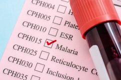 Provi il tubo del sangue sulla carta della forma della prova di malaria fotografia stock libera da diritti