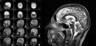 Proyección de imagen de resonancia magnética del cerebro foto de archivo libre de regalías