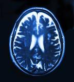 Proyección de imagen del cerebro Foto de archivo libre de regalías