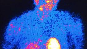 Proyección de imagen de diagnóstico colorida del spect de la medicina nuclear metrajes