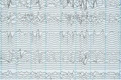 Proyección de imagen de la grabación de la electroencefalografía del ser humano fotos de archivo libres de regalías