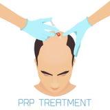 PRP-behandling för män royaltyfri illustrationer