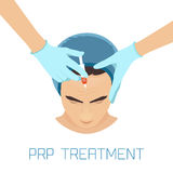 PRP facial treatment for men. Platelet rich plasma facial injection. PRP therapy process for facelift and wrinkles. Male rejuvenation treatment infographics Royalty Free Stock Photos