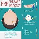 PRP injection procedure Stock Photos