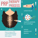 PRP injection therapy Royalty Free Stock Photo