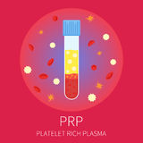 PRP test tubing. Test tubing filled with blood for PRP procedure on red background. Platelet rich plasma laboratory equipment. Medical concept. Vector Stock Photography
