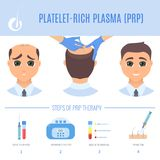PRP therapy for men. Platelet rich plasma injection procedure. PRP therapy process for men. Male hair loss treatment infographics. Hair regrowth stimulation Royalty Free Stock Images