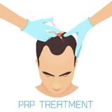 PRP treatment for men Royalty Free Stock Photo