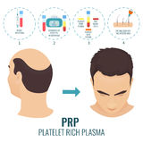 PRP treatment poster. Male hair loss treatment with platelet rich plasma injection. Stages of PRP procedure. Alopecia infographic medical template for Stock Photos