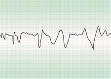 Prueba de la cardiología stock de ilustración