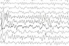 Prueba de la electroencefalografía Imágenes de archivo libres de regalías