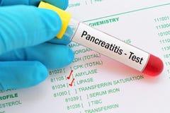 Prueba de la pancreatitis fotos de archivo