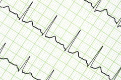 Prueba del electrocardiograma Imágenes de archivo libres de regalías