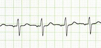 Prueba del electrocardiograma Fotos de archivo libres de regalías