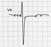 Prueba del electrocardiograma que muestra la actividad eléctrica del corazón Foto de archivo libre de regalías