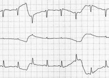 Prueba del electrocardiograma que muestra la actividad eléctrica del corazón Imagenes de archivo