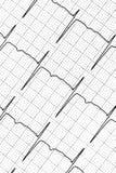 Prueba del electrocardiograma que muestra la actividad eléctrica del corazón Imágenes de archivo libres de regalías