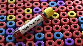 Prueba del virus de la hepatitis-UNo ilustración del vector