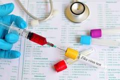 Prueba del virus de Zika Imagen de archivo