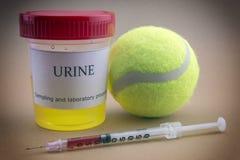 Pruebas para la investigación de la orina junto con una bola del tenis imagen de archivo libre de regalías