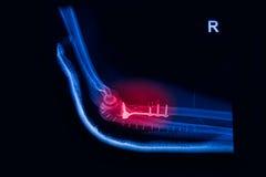 Przełamu łokieć, przedramion promieniowań rentgenowskich wizerunek obraz royalty free