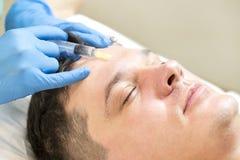 Przechodzi kurs mesotherapy klinika Fotografia Stock