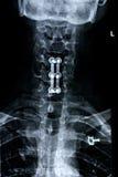 przednia szyjne kręgosłup Fotografia Royalty Free