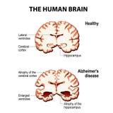 Przekrój poprzeczny ludzki mózg z Alzheimer ` s chorobą Zdjęcie Stock