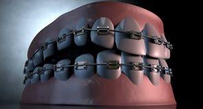 Przerażający zęby Z brasami Obraz Royalty Free