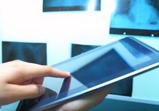 PS片剂和X-射线视框 免版税库存照片